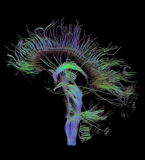 DTI-sagittal-fibers